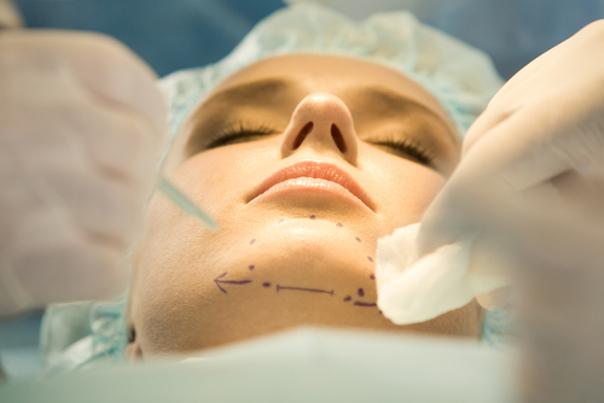 Anestesia cirugía mentoplastia