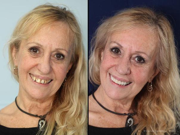 ¿Cómo es la recuperación de una intervención de implante dental?