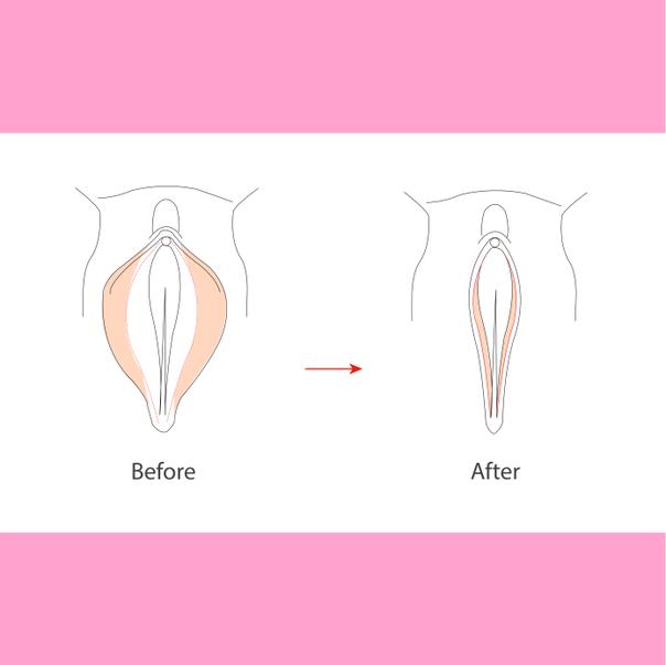 Procedimiento de vaginoplastia