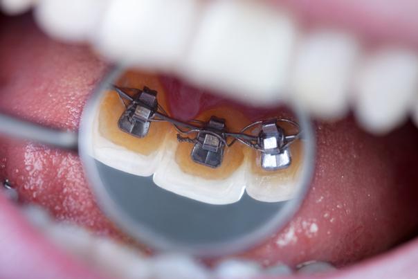 tratamiento de ortodoncia lingual