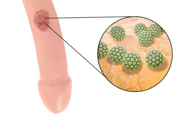 diagnostico de condilomas