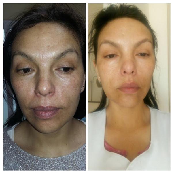antes y después de la mesoterapia