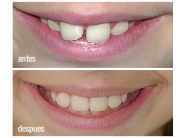 Resultados de odontopediatría