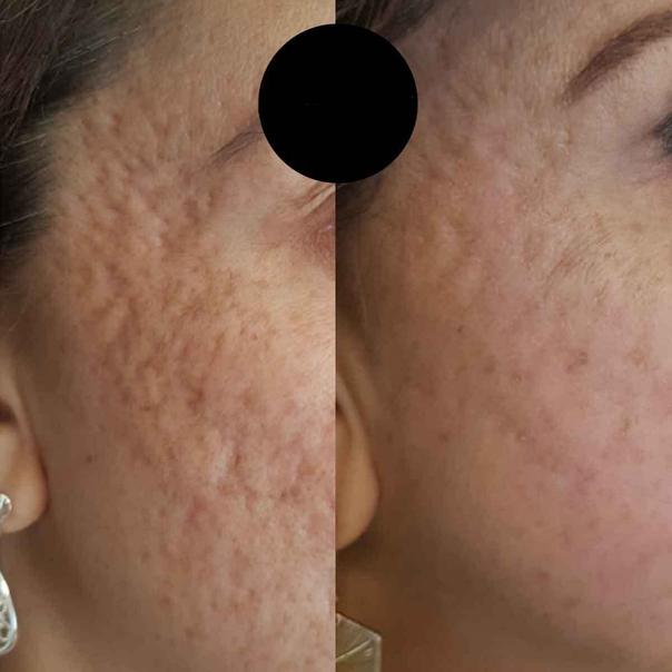 Antes y después de tratamiento acné
