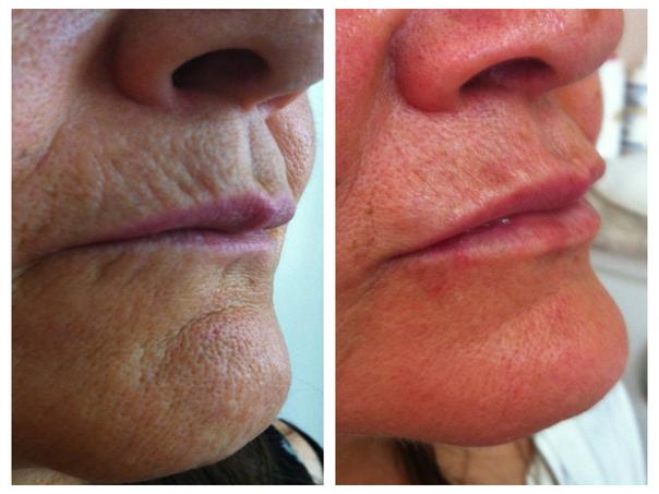 Antes y después aplicación ácido hialurónico