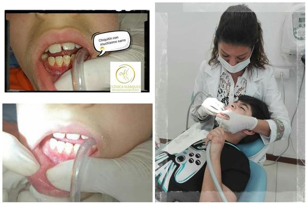 limpieza dental en chile