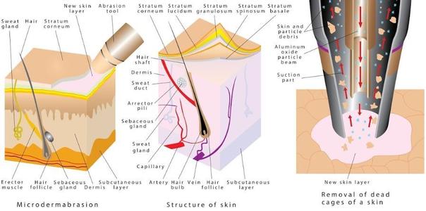 Beneficios microdermoabrasión