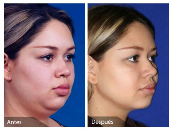 Resultados liposucción papada