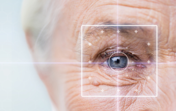 Candidatos cirugía miopia
