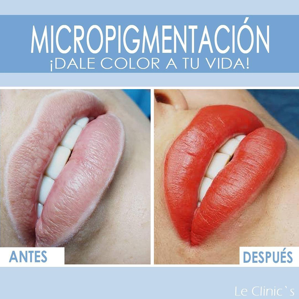 antes y después de micropigmentación
