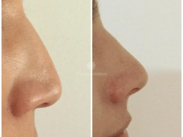 Antes y después rinomodelación con ácido hialurónico