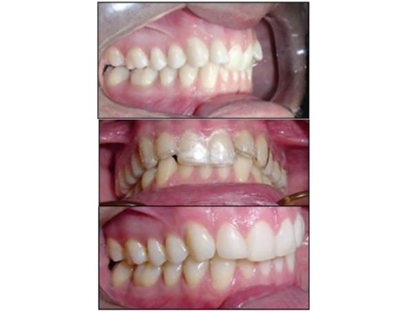 resultados ortodoncia invisible
