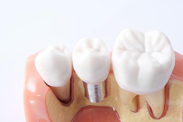 ¿Qué son los implantes dentales?