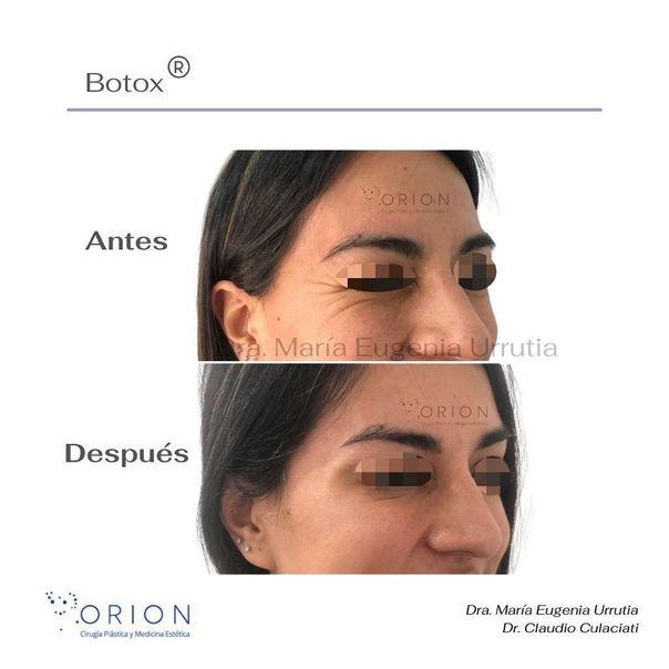 botox mujer