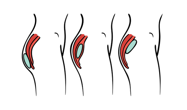Técnicas de implantes de glúteos
