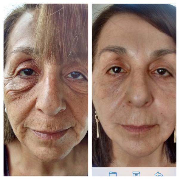 Antes y después de peeling