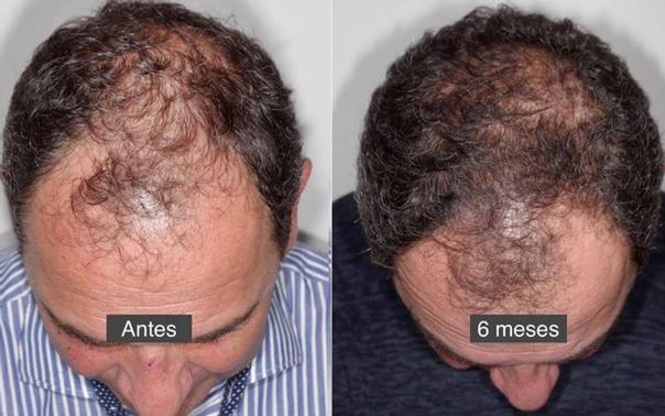 Resultados contra la alopecia