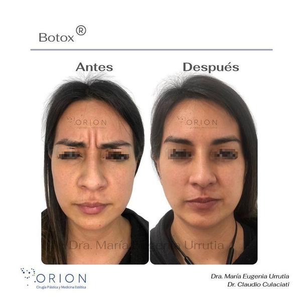 botox antes y después