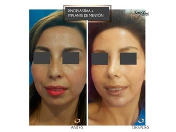Antes y después rinoplastia y mentoplastia