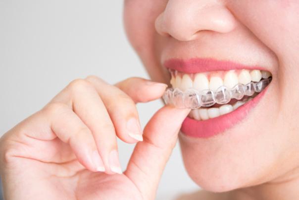Beneficios de ortodoncia invisible
