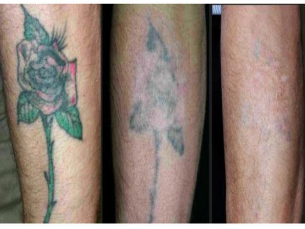 Antes y después borrar tatuaje