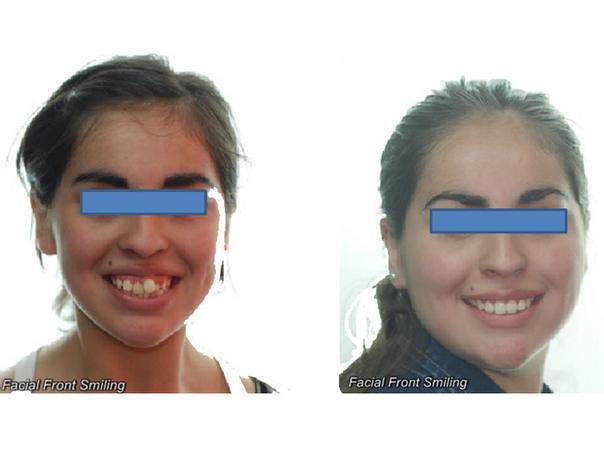 resultados con tratamiento de brackets