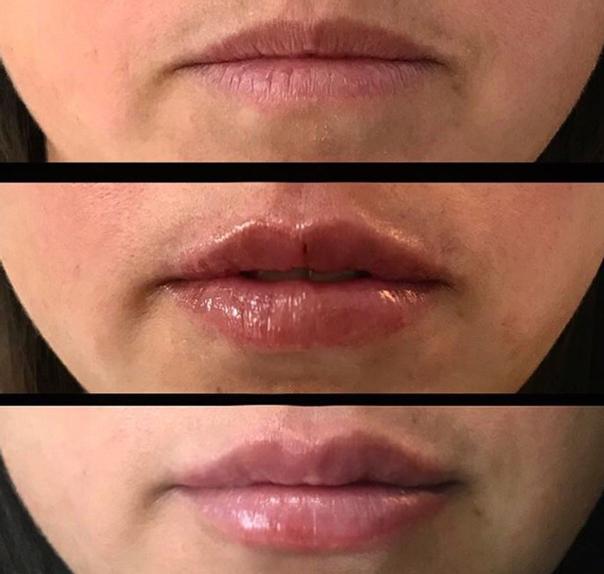 Candidatos para el aumento de labios