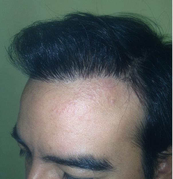 resultados definitivos implante capilar