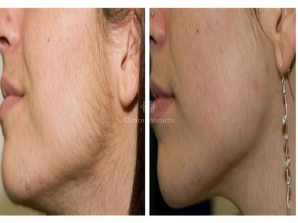 Antes y después de la depilación láser