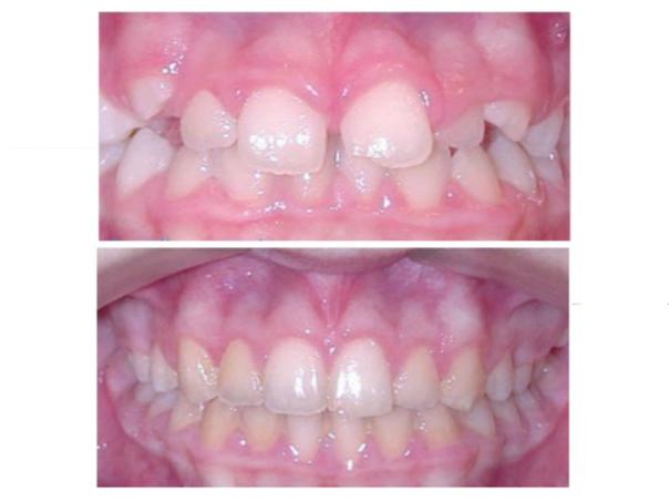 Tratamiento de odontopediatría