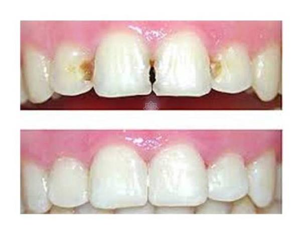 ¿Cuáles son los principales resultados de este tratamiento?