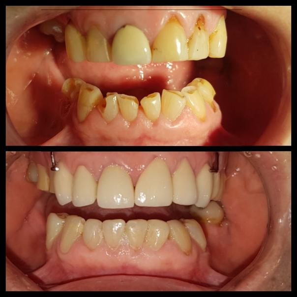 antes y después de una endodoncia