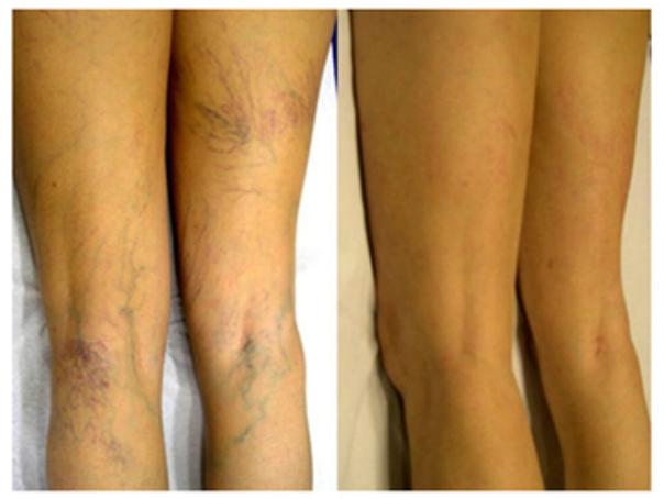Antes y después tratamiento várices