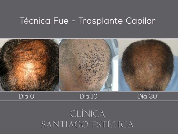 Imagen Clínica Santiago Estética