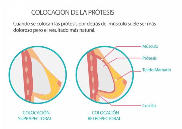 Colocación prótesis de mama