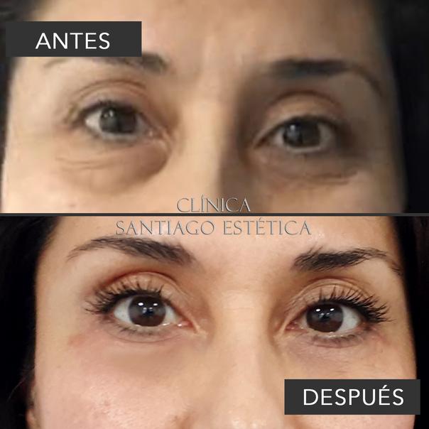 Mujer antes y después blefaroplastia