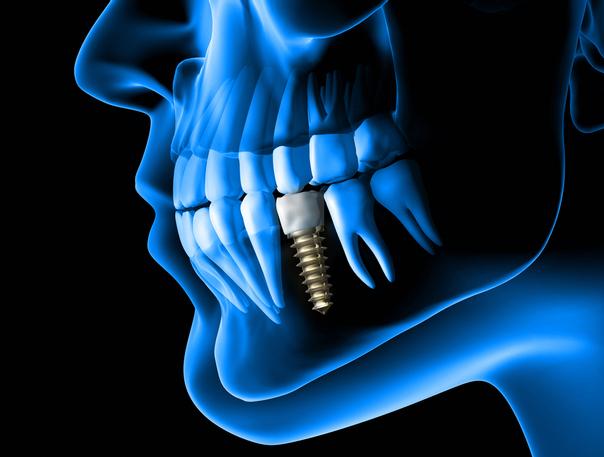 ¿Quiénes son los candidatos ideales para un implante dental?