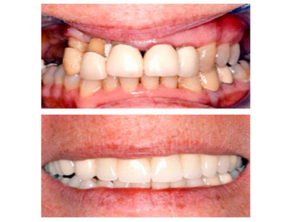 ¿Cómo es la recuperación de un tratamiento de periodoncia?