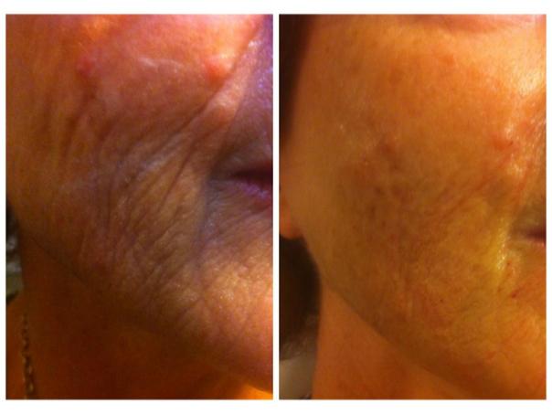 Beneficios de Rejuvenecimiento facial