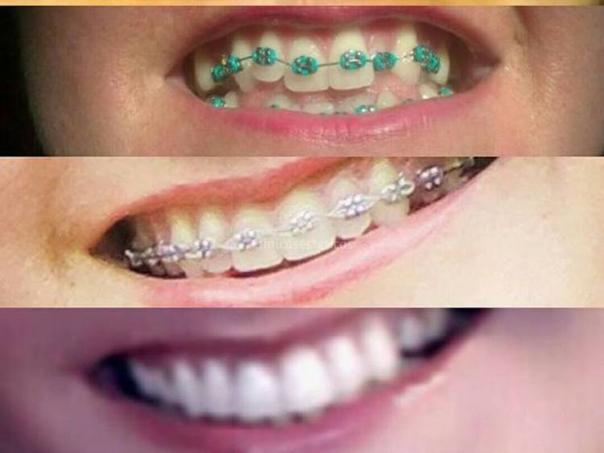 ortodoncia dental con brackets