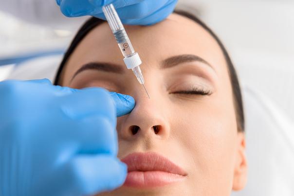 Relleno de nariz con ácido hialurónico