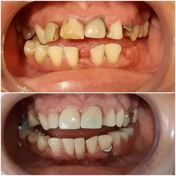 ¿Cómo es la recuperación luego de un tratamiento de prótesis dentales?