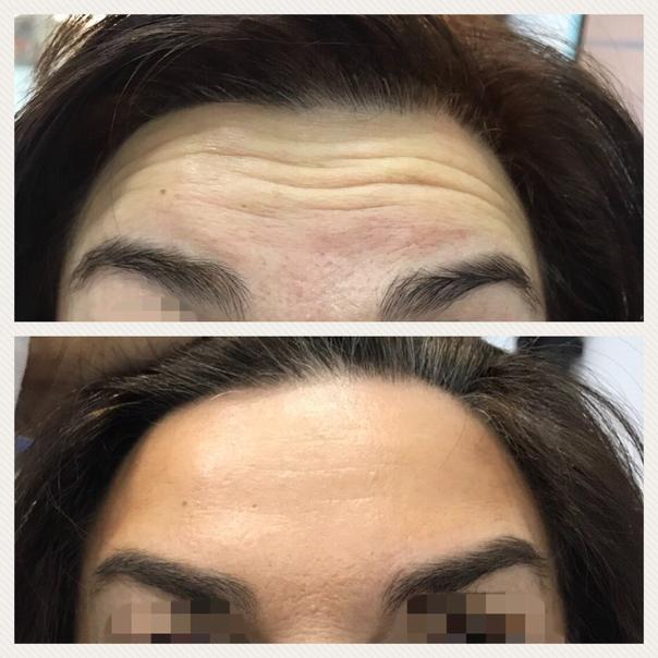 antes y después botox