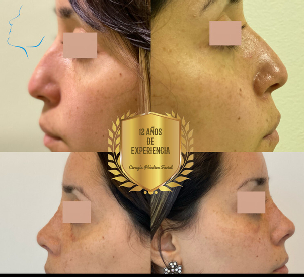 Cirugía de nariz
