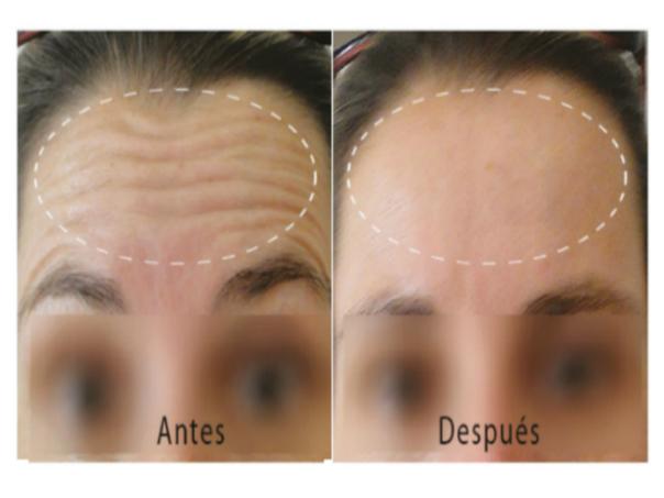 antes y después de usar mesoterapia