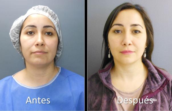 Resultado de la cirugía de eliminación bolas de bichat