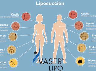Lipo Vaser