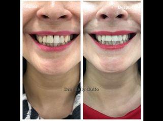 Botox Sonrisa Gingival