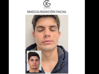 Masculinización Facial