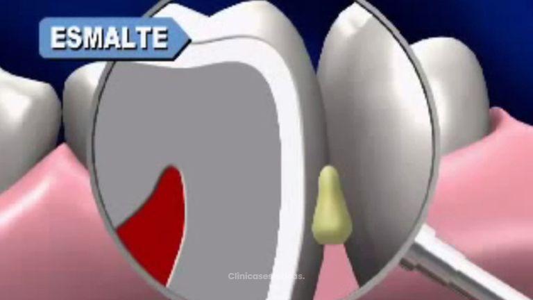 Restaura tu boca y consigue tu mejor sonrisa